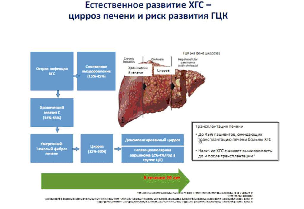 Естественное развитие ХГС - цирроз печени и риск развития ГЦК